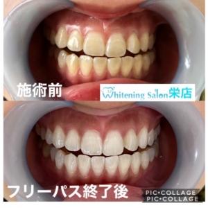 【虫歯の原因菌】