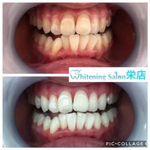 【歯の黄ばみ原因】