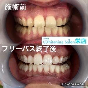 【虫歯ができる流れとは】