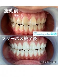 【健康な人の口臭原因は舌にあり!】