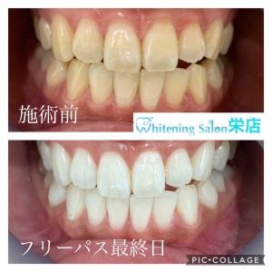 【健康な暮らしに欠かせない大切な歯】