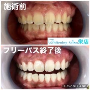 【歯の硬さ】
