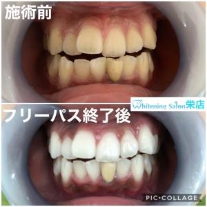 【歯の役割】