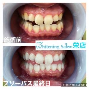 【歯石について】