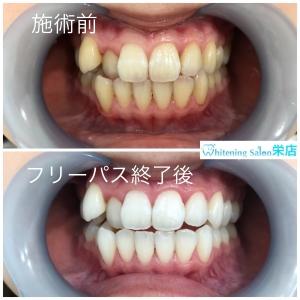 【歯の種類】