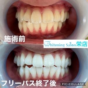 【歯磨き粉を使うのは、良いのか?】