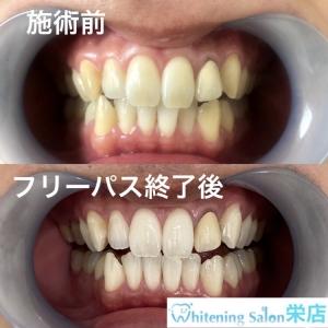 【虫歯・歯周病予防の為にできること】
