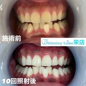 【歯磨きの後のうがいは一回でいい?!】