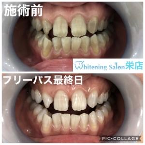 【テトラサイクリンの歯について】