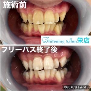 【歯ぎしりはなぜおこる??】