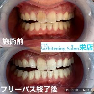 【歯の神経はなぜ死ぬのか】