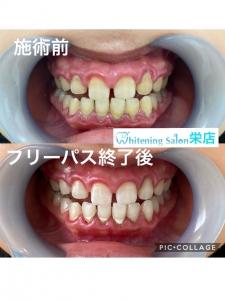 【歯科での歯のクリーニングってどんなことするの?】