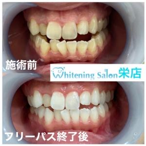 【歯に関する豆知識】