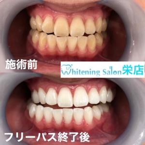 【歯のシミとは】