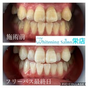 【歯の種類と本数について】