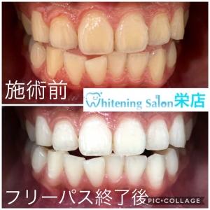 【歯垢と歯石】
