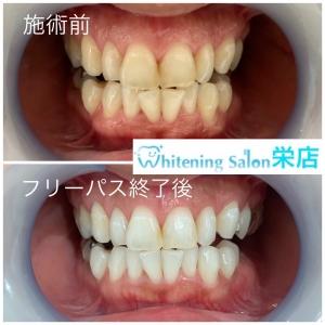 【歯は毎日溶けている?!】
