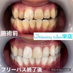 【歯並びが悪いとどうなる?】