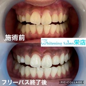 【歯はどのぐらい硬いのか】