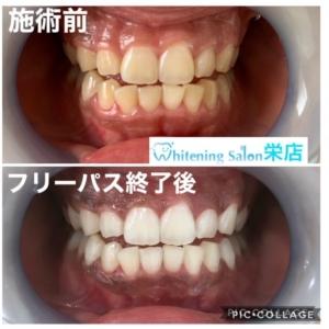 【プラークの歯へのダメージ】