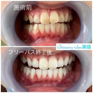 【歯垢と歯石の落とし方】