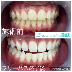 【歯ブラシの替え時とは】