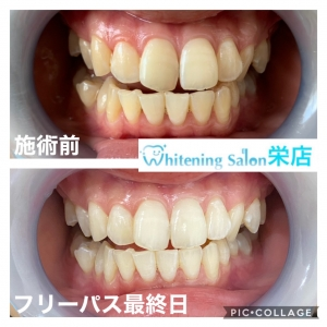 【口呼吸では虫歯が増える?!】