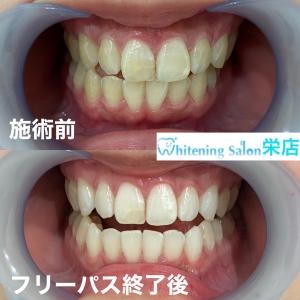 【智歯周囲炎】
