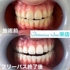 【セルフでできる歯を白くする方法】