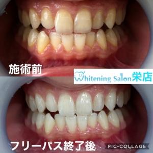 【歯はいつ生えるの?】