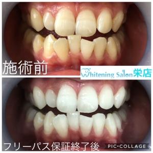 【人間の歯と犬の歯の違い】