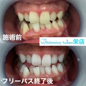 【虫歯じゃなくても歯が溶ける?!】