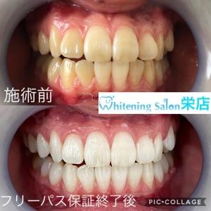 【歯の神経】