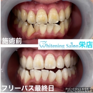 【永久歯とは??】