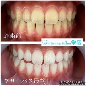 【顎関節症の治療方法】
