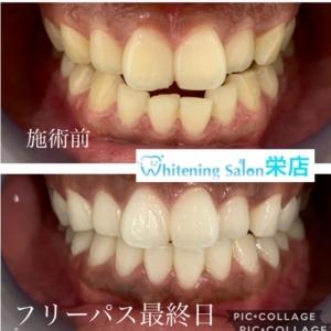 【歯石除去の目的】