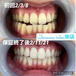 【歯肉炎の症状チェック】