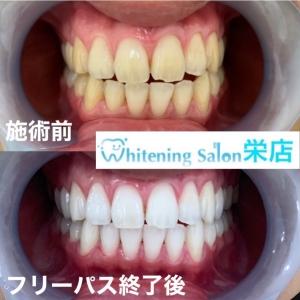 【本来あるべき永久歯がない?】