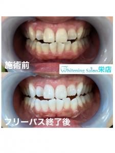 【歯ぐきは、お肌と同じ2層構造なのです】