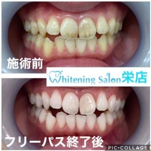 【歯と筋肉の構造とは】