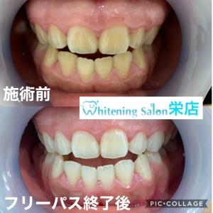 【妊娠期の歯の状態】