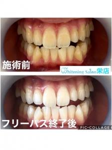 【間食のしすぎは虫歯の危険信号!】