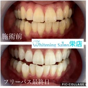 【健康な歯を目指しましょう】