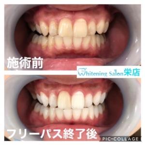 【差し歯とインプラントの違い】