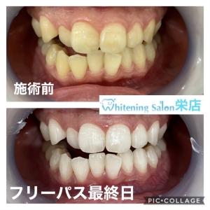 【初期の虫歯は削らず治せる!】