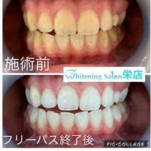 【正しい歯ブラシの選び方】