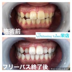 【ホワイトスポットと虫歯】