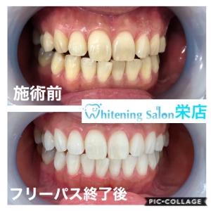 【歯の矯正中でも黄ばませずキレイに保つ方法】