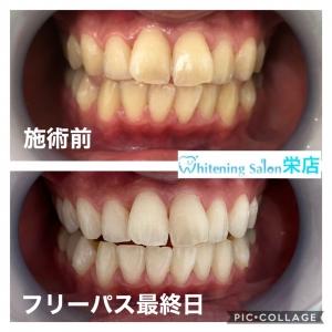 【骨と歯の違い】