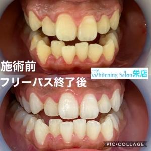 【歯の汚れ】